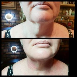 HIFU – THE MUST HAVE TREATMENT FOR JOWLS!